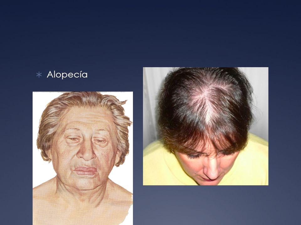 Alopecía