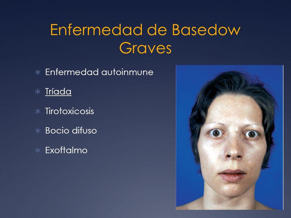 Enfermedad de Basedow Graves