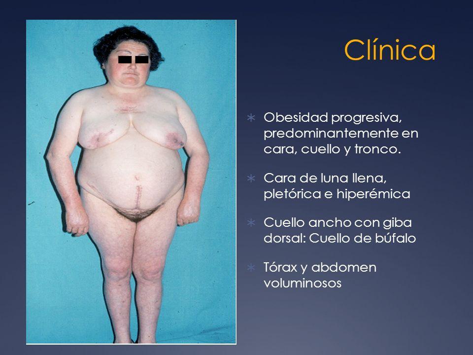 Clínica Obesidad progresiva, predominantemente en cara, cuello y tronco. Cara de luna llena, pletórica e hiperémica.