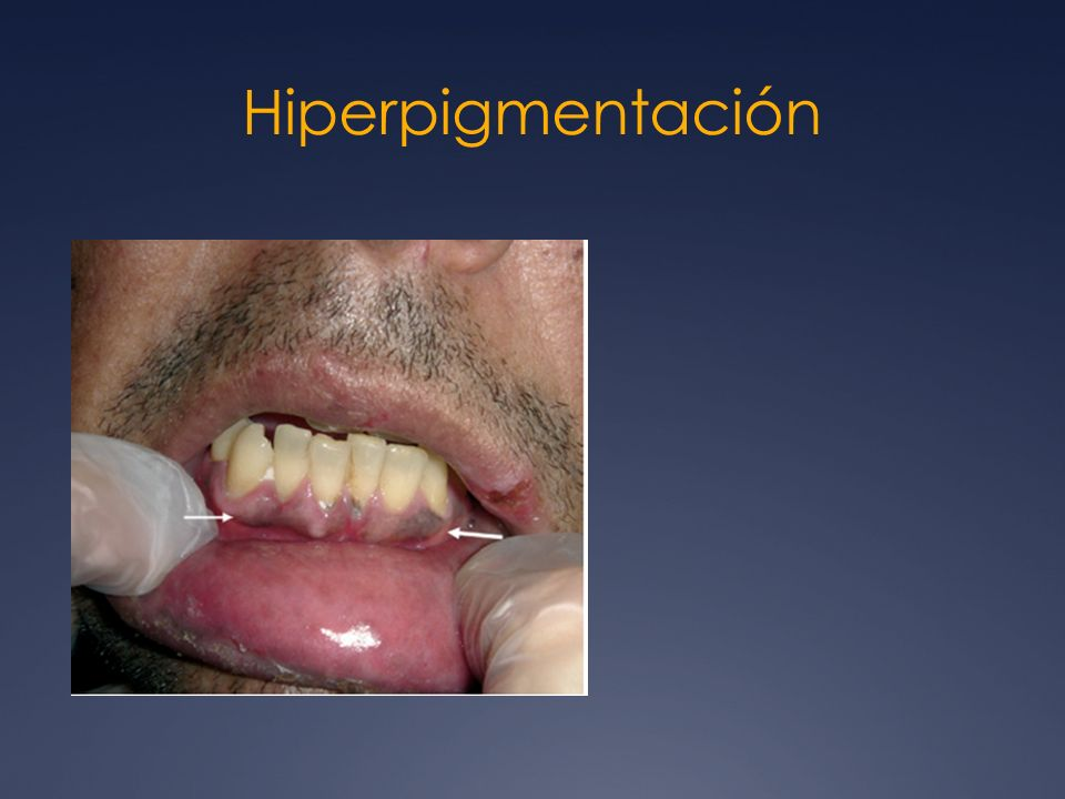 Hiperpigmentación