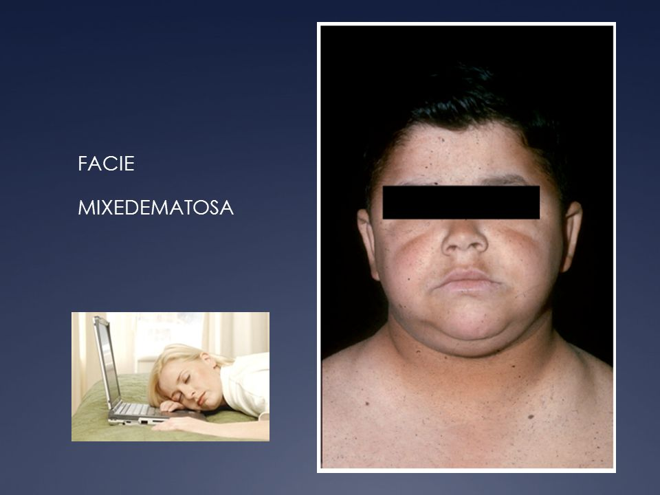 FACIE MIXEDEMATOSA