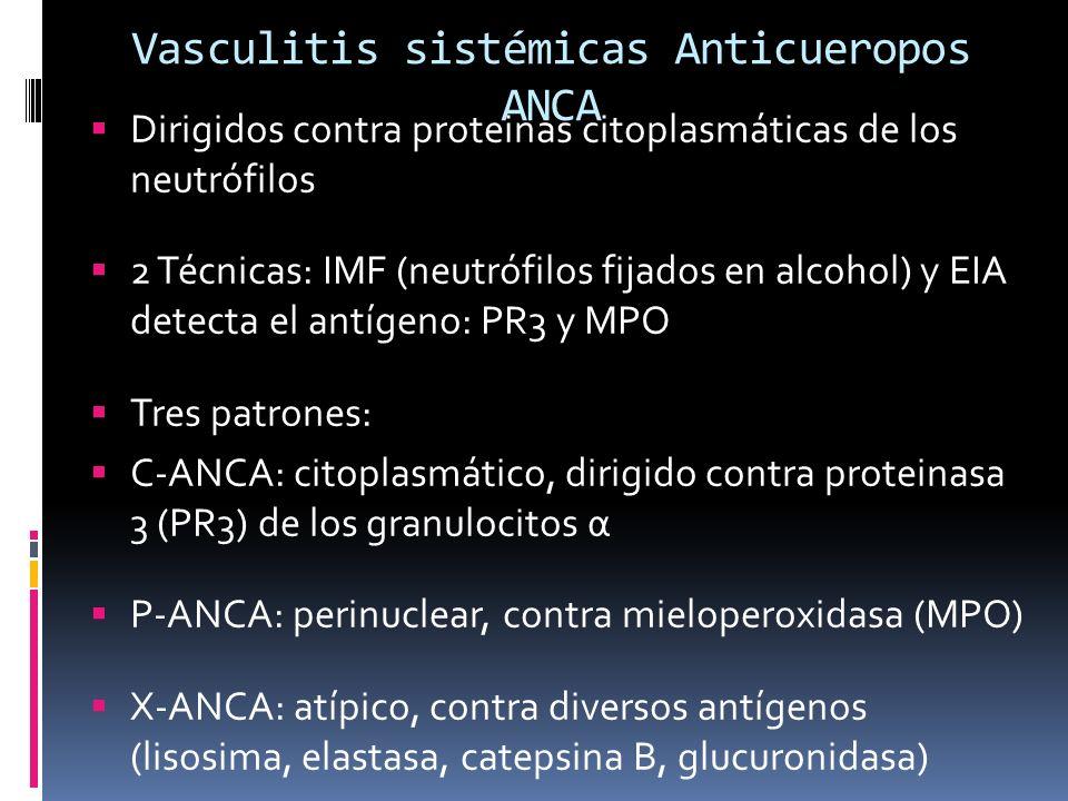 Vasculitis sistémicas Anticueropos ANCA