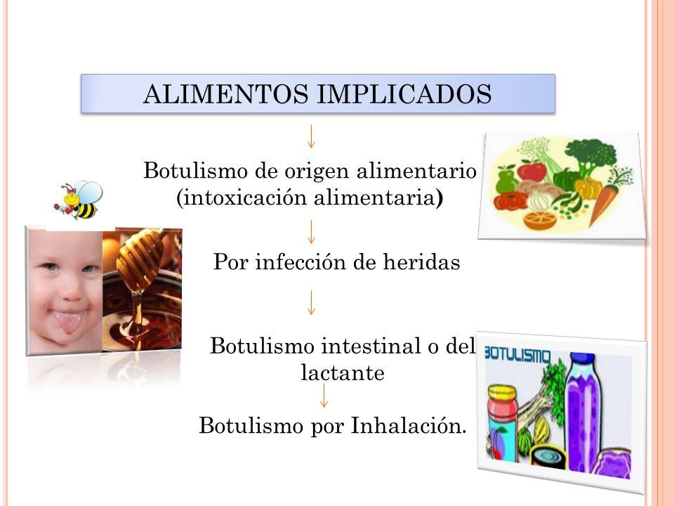 ALIMENTOS IMPLICADOS Botulismo de origen alimentario (intoxicación alimentaria) Por infección de heridas.