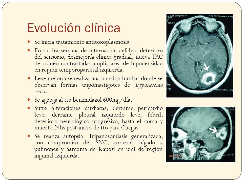 Evolución clínica Se inicia tratamiento antitoxoplasmosis