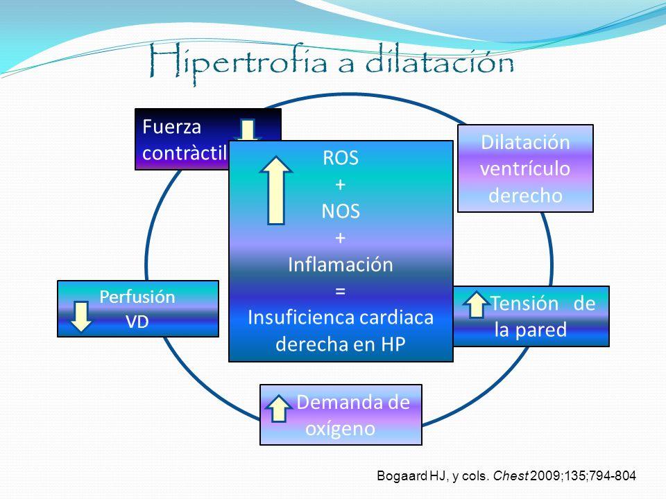Hipertrofia a dilatación