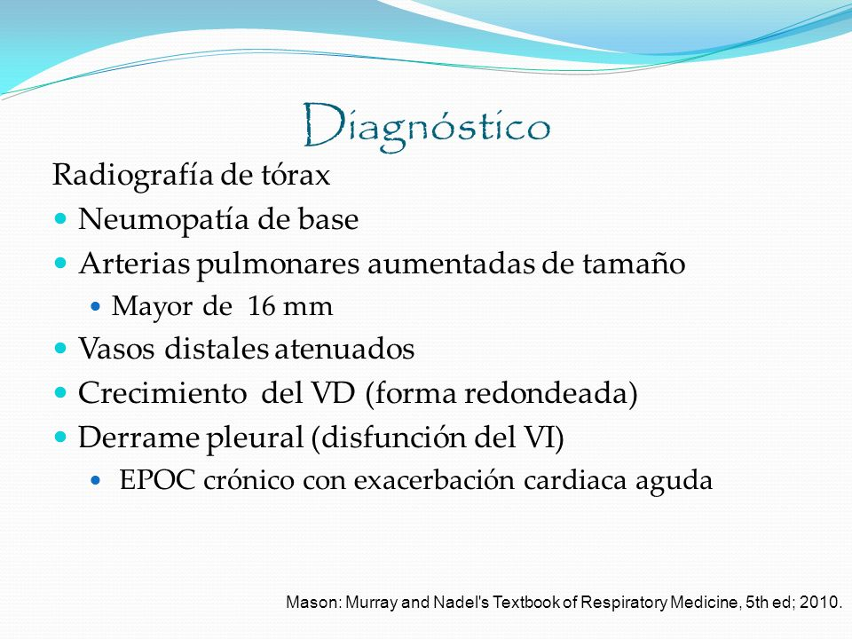 Diagnóstico Radiografía de tórax Neumopatía de base