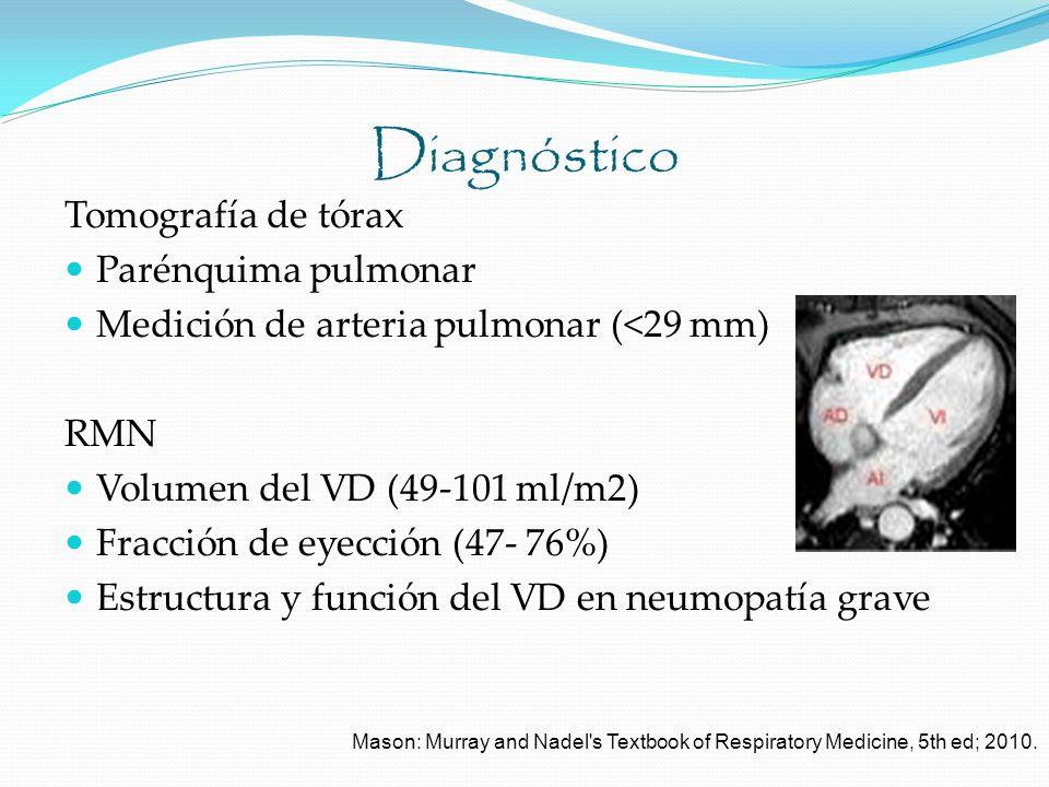 Diagnóstico Tomografía de tórax Parénquima pulmonar