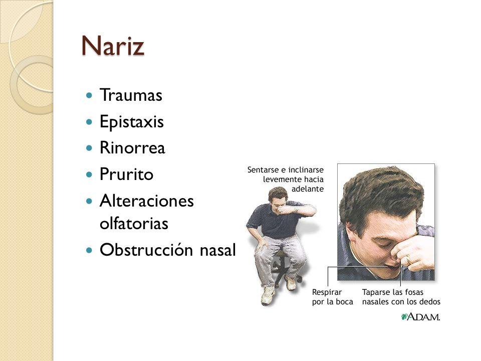 Nariz Traumas Epistaxis Rinorrea Prurito Alteraciones olfatorias