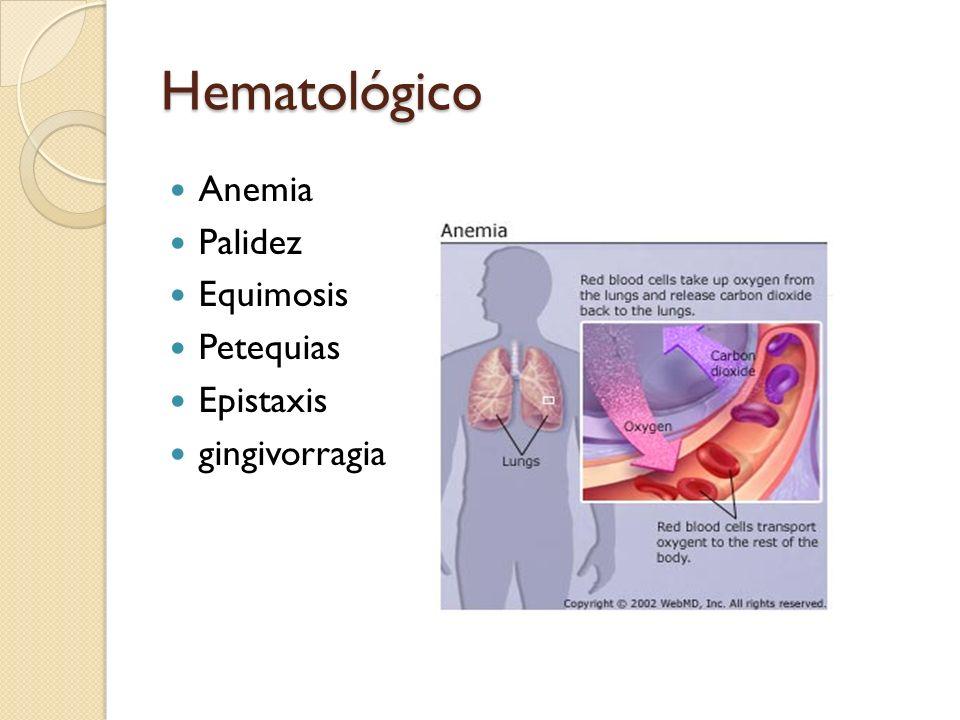 Hematológico Anemia Palidez Equimosis Petequias Epistaxis
