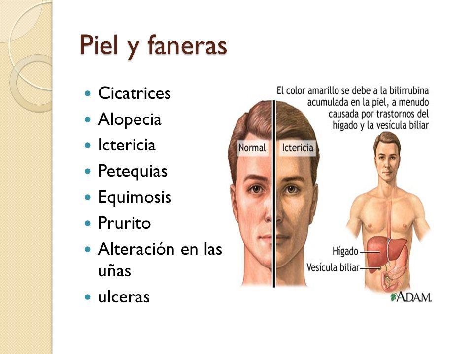 Piel y faneras Cicatrices Alopecia Ictericia Petequias Equimosis