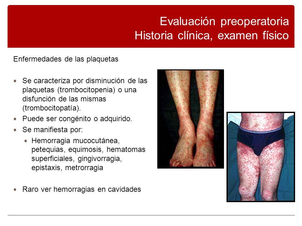 Evaluación preoperatoria Historia clínica, examen físico