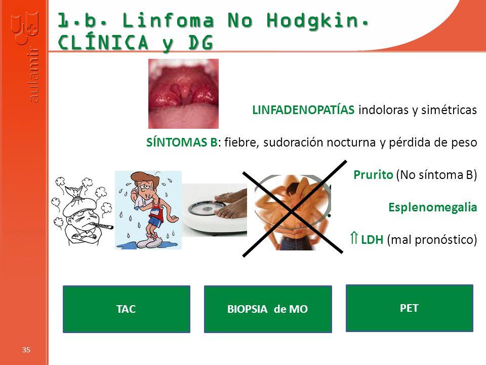 1.b. Linfoma No Hodgkin. CLÍNICA y DG