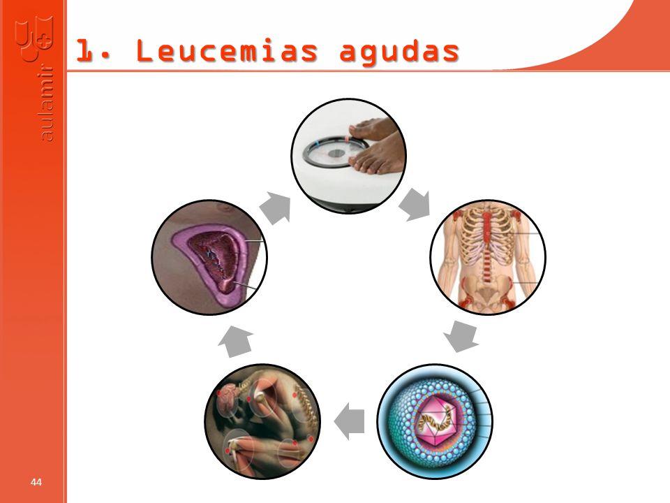 1. Leucemias agudas 44