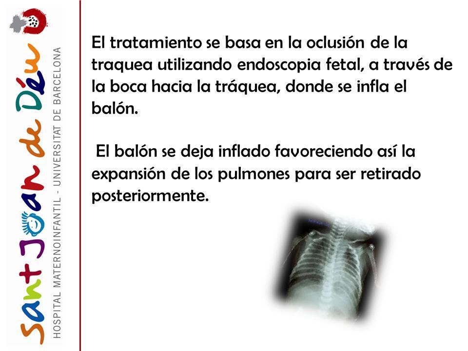 El tratamiento se basa en la oclusión de la traquea utilizando endoscopia fetal, a través de la boca hacia la tráquea, donde se infla el balón.