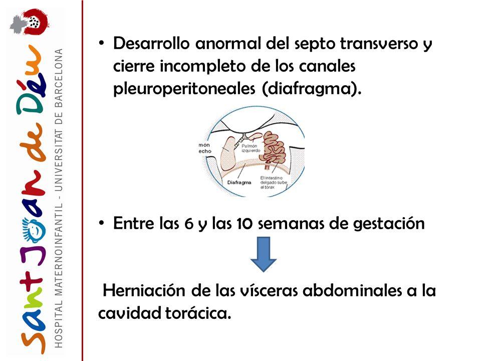 Desarrollo anormal del septo transverso y cierre incompleto de los canales pleuroperitoneales (diafragma).