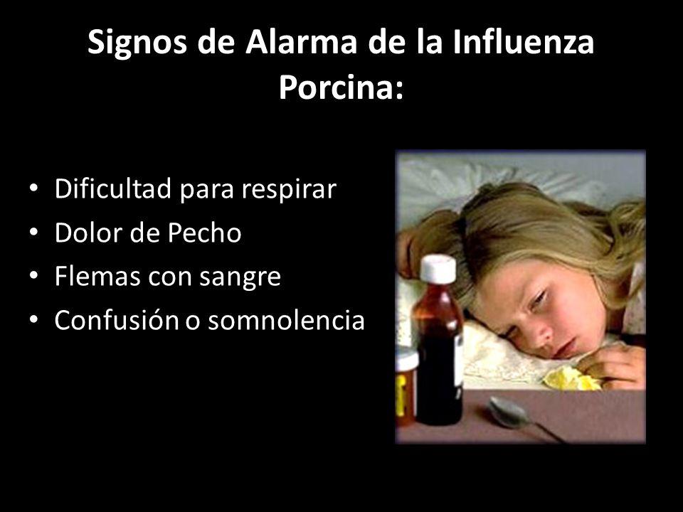 Signos de Alarma de la Influenza Porcina: