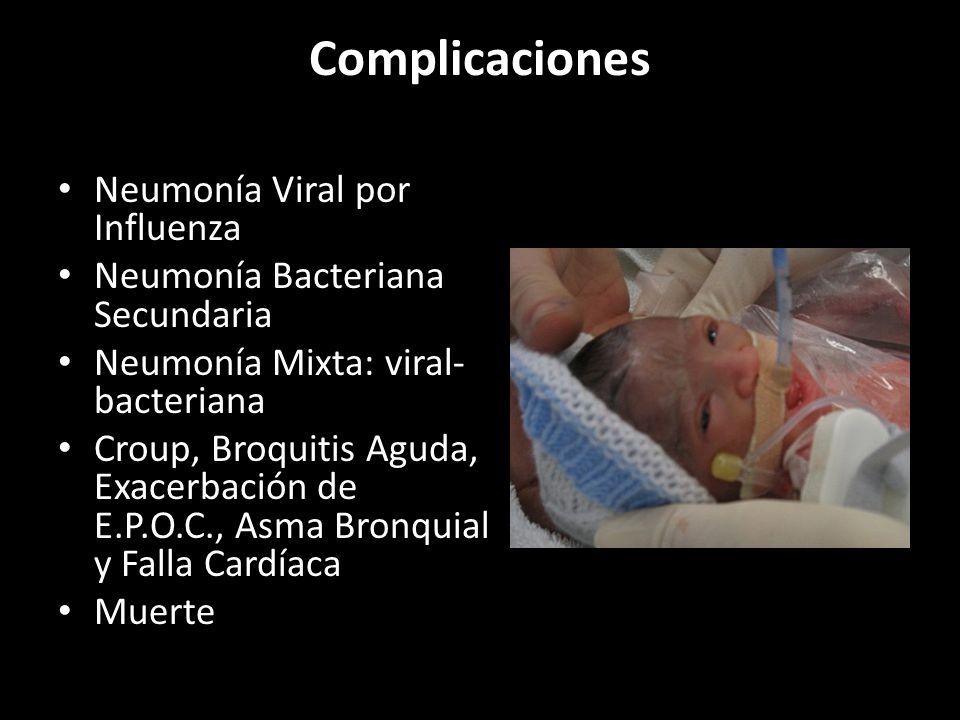 Complicaciones Neumonía Viral por Influenza