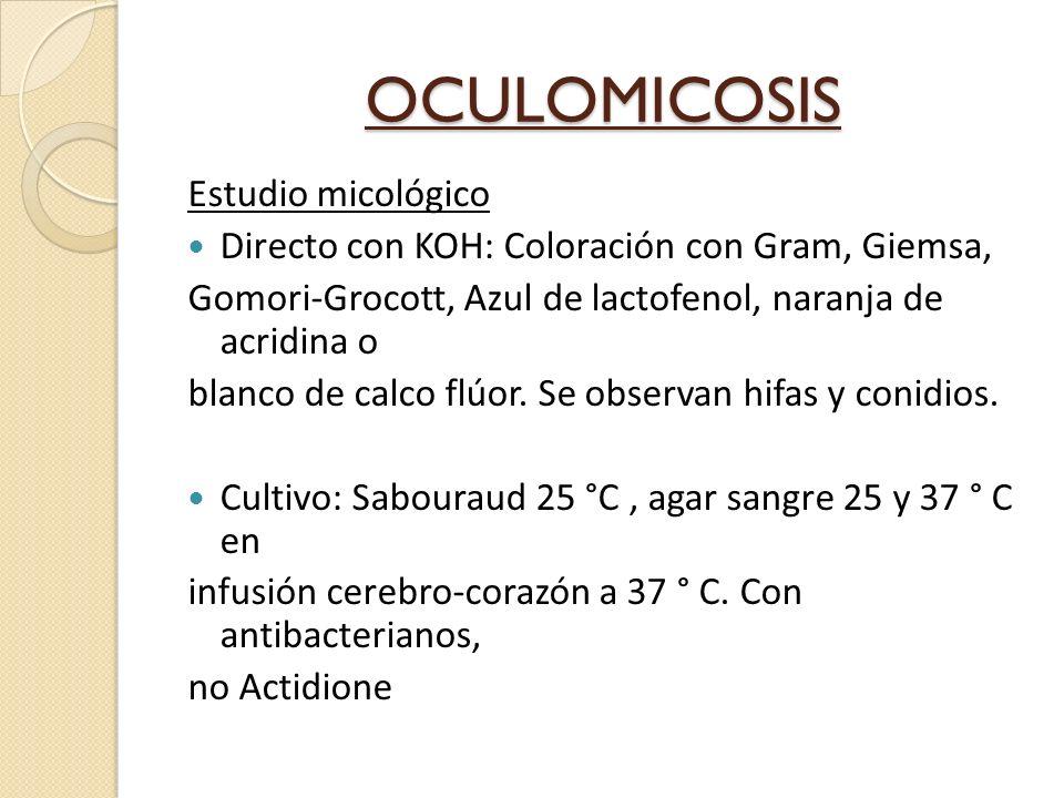 OCULOMICOSIS Estudio micológico