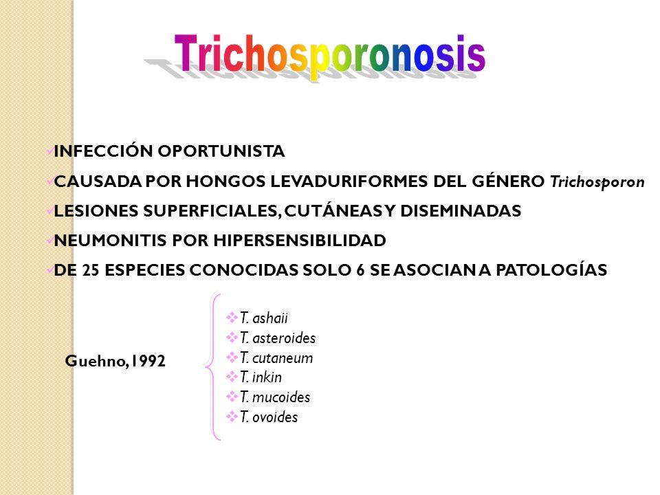 Trichosporonosis INFECCIÓN OPORTUNISTA