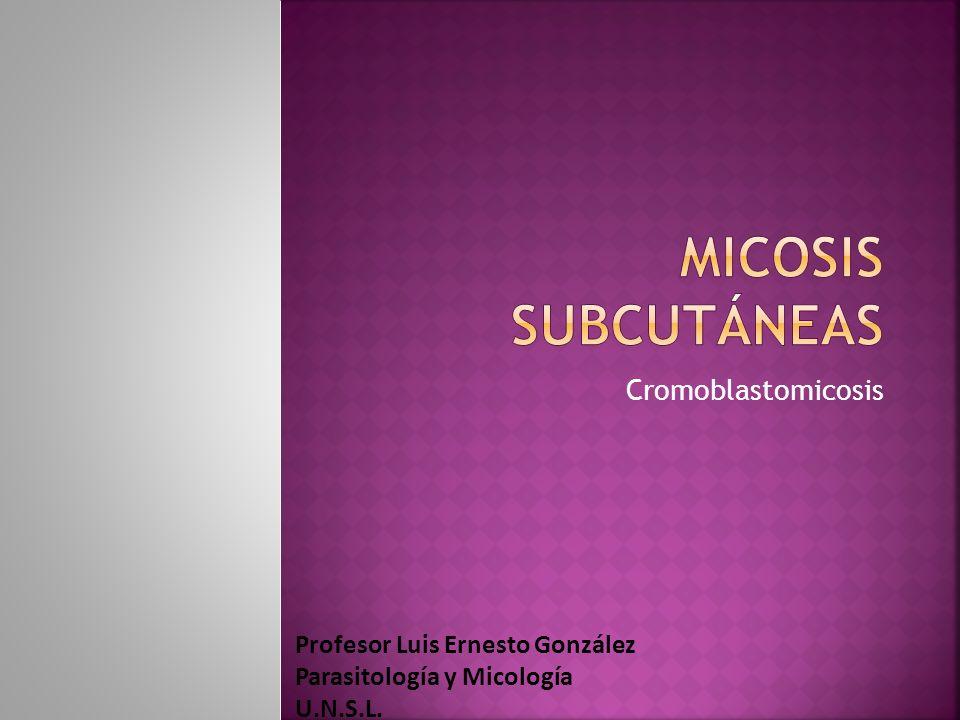 Micosis subcutáneas Cromoblastomicosis Profesor Luis Ernesto González