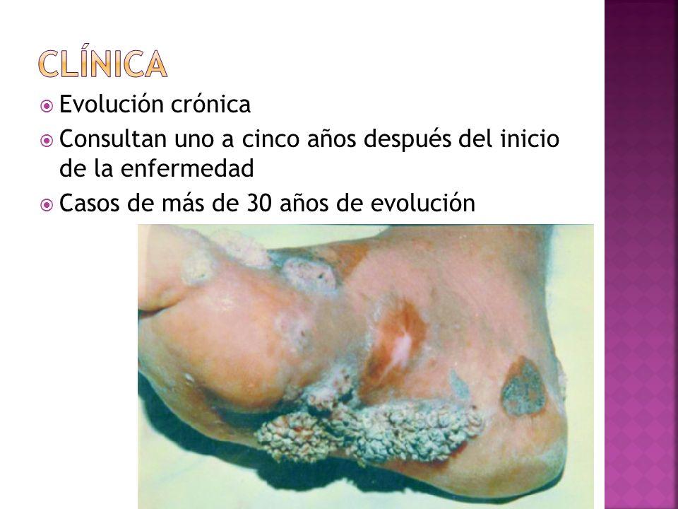 clínica Evolución crónica