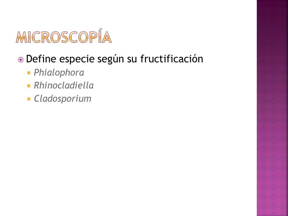 microscopía Define especie según su fructificación Phialophora