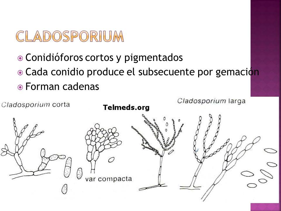 cladosporium Conidióforos cortos y pigmentados
