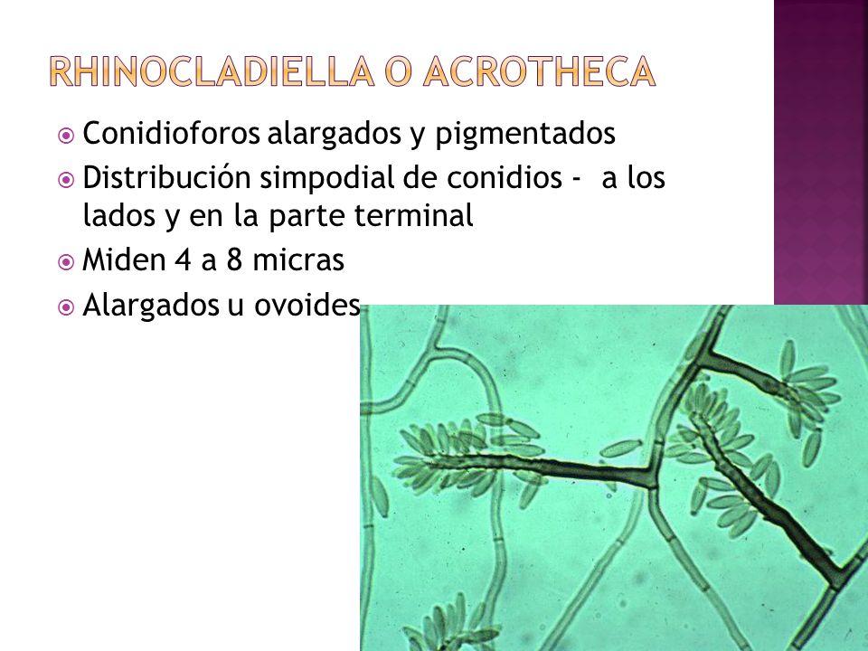 Rhinocladiella o acrotheca