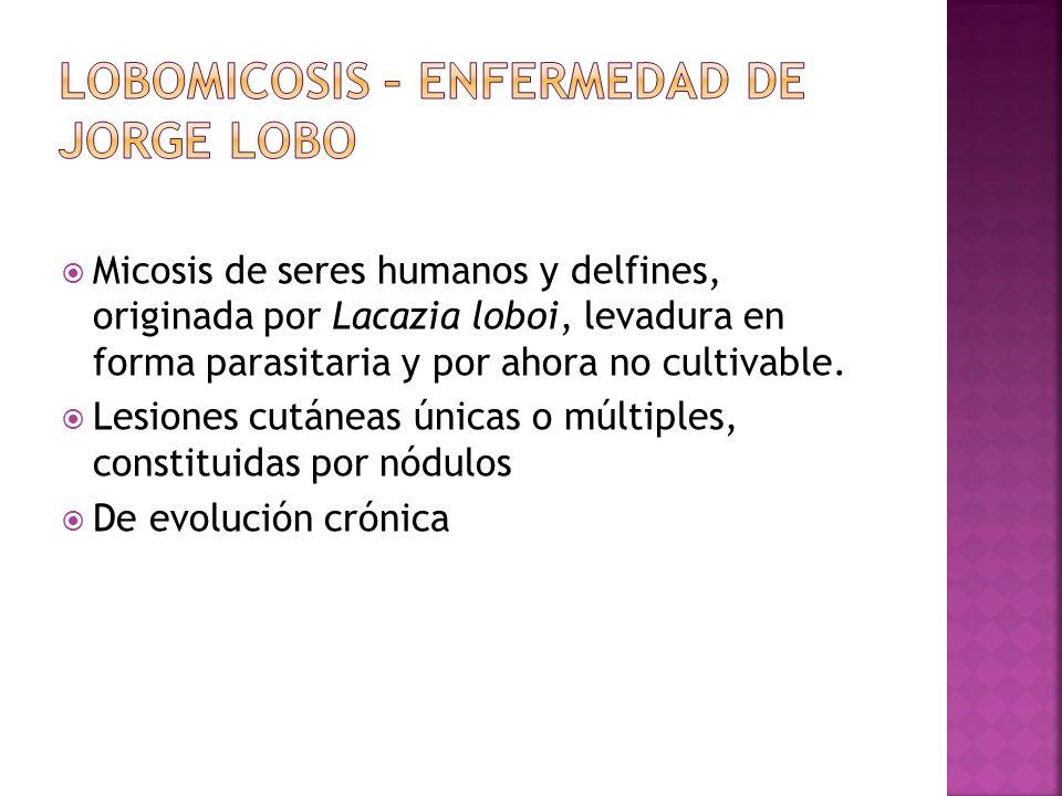 LOBOMICOSIS – ENFERMEDAD DE JORGE LOBO