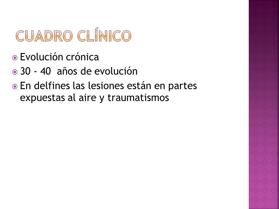 Cuadro clínico Evolución crónica 30 - 40 años de evolución