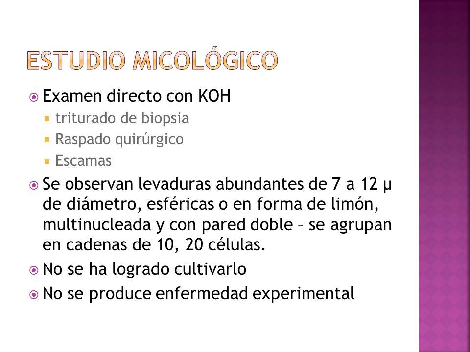 Estudio micológico Examen directo con KOH