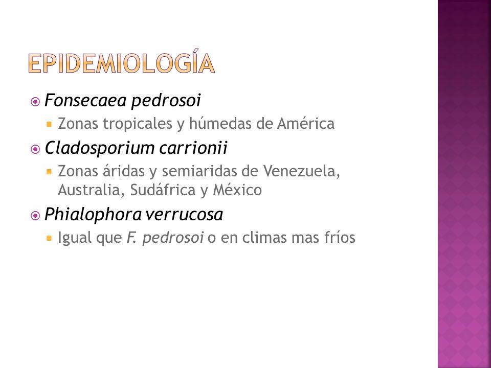 epidemiología Fonsecaea pedrosoi Cladosporium carrionii