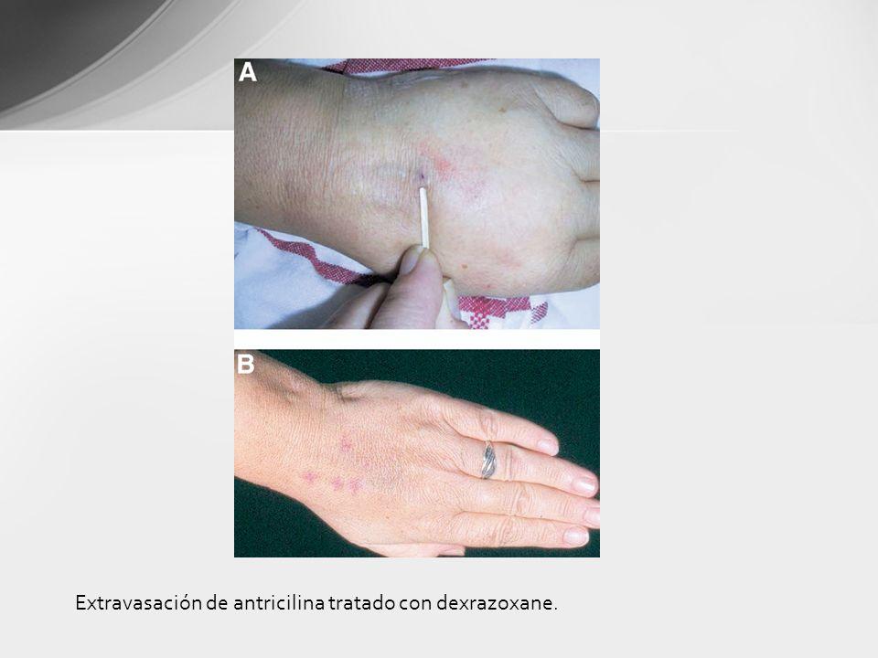 Extravasación de antricilina tratado con dexrazoxane.
