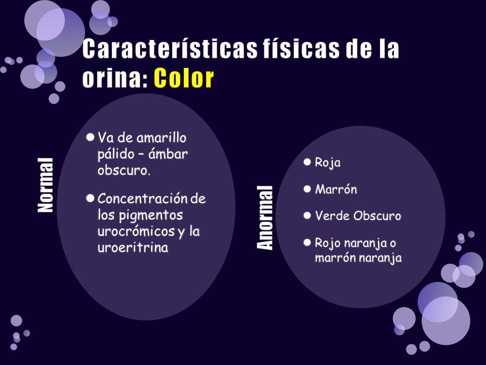 Características físicas de la orina: Color