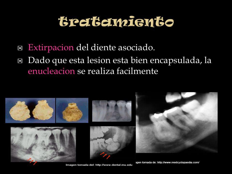 tratamiento Extirpacion del diente asociado.