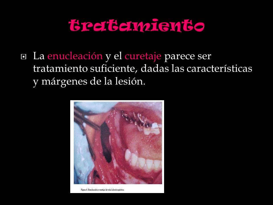 tratamiento La enucleación y el curetaje parece ser tratamiento suficiente, dadas las características y márgenes de la lesión.