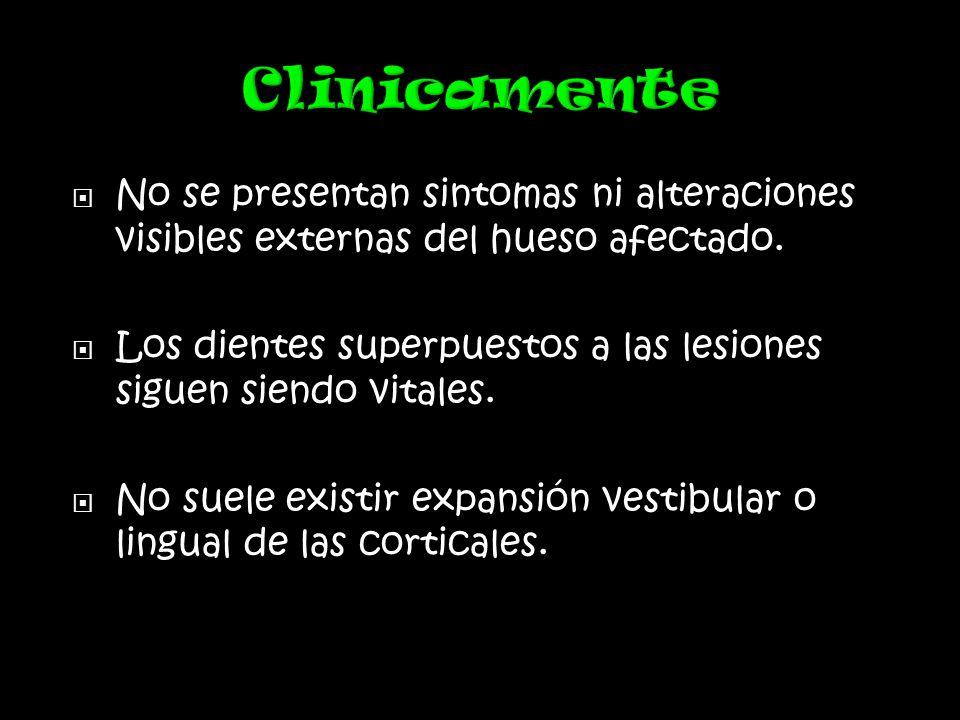 Clinicamente No se presentan sintomas ni alteraciones visibles externas del hueso afectado.
