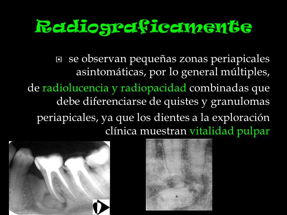 Radiograficamente se observan pequeñas zonas periapicales asintomáticas, por lo general múltiples,