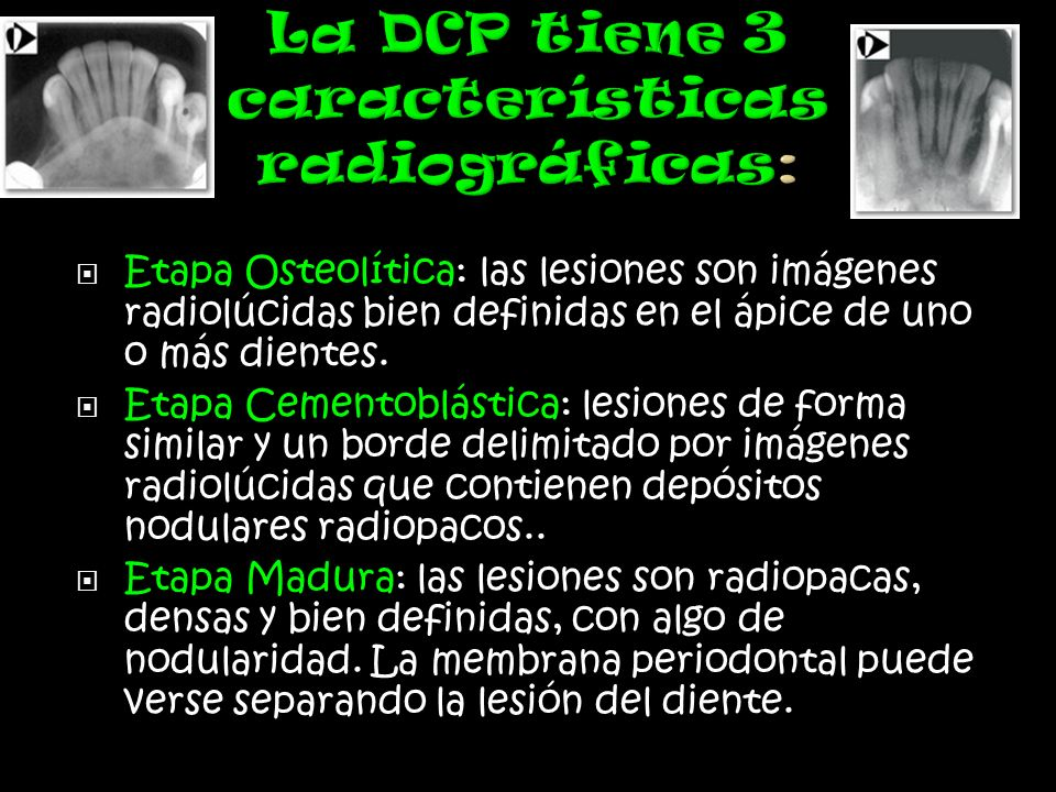La DCP tiene 3 características radiográficas: