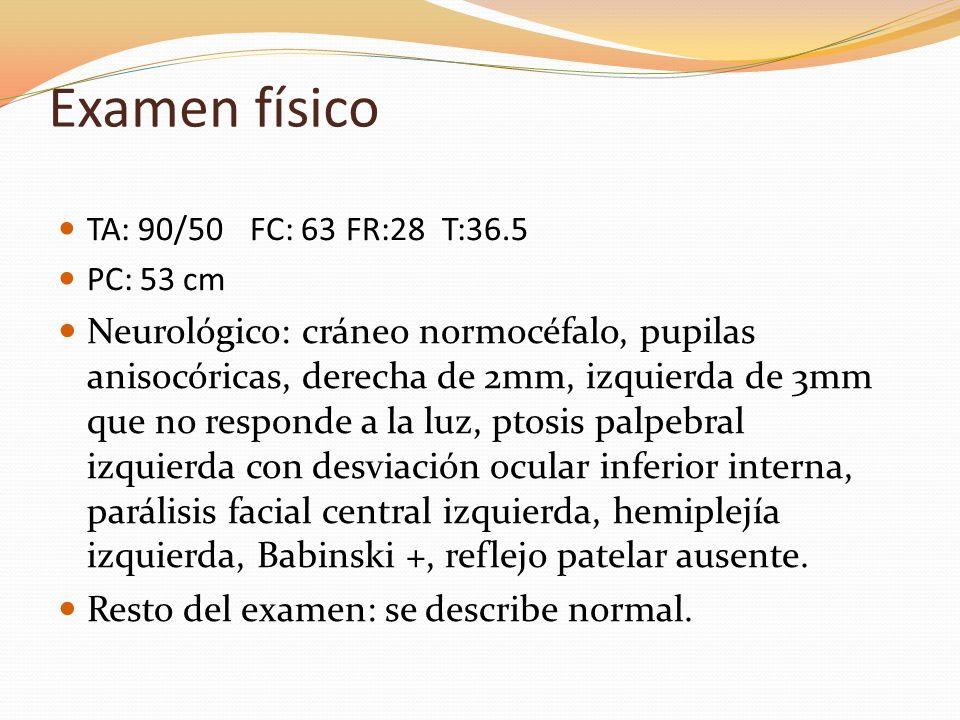 Examen físico TA: 90/50 FC: 63 FR:28 T:36.5. PC: 53 cm.