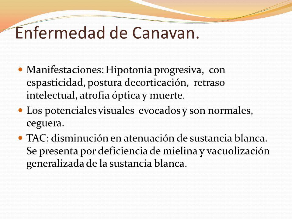 Enfermedad de Canavan.