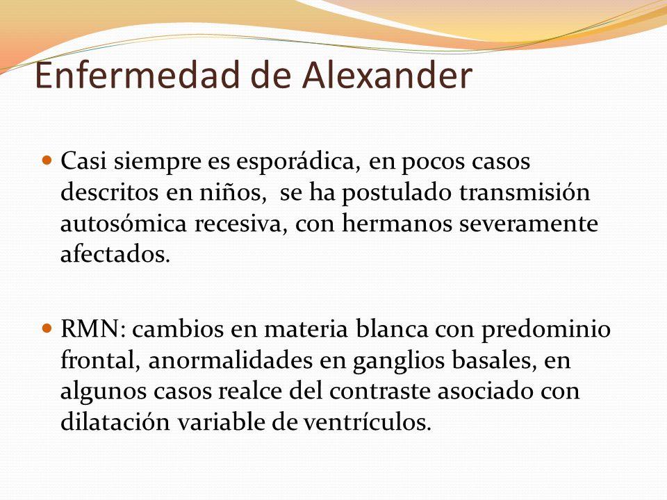 Enfermedad de Alexander