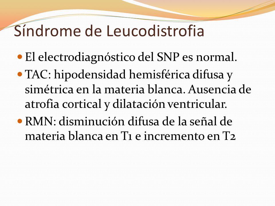 Síndrome de Leucodistrofia