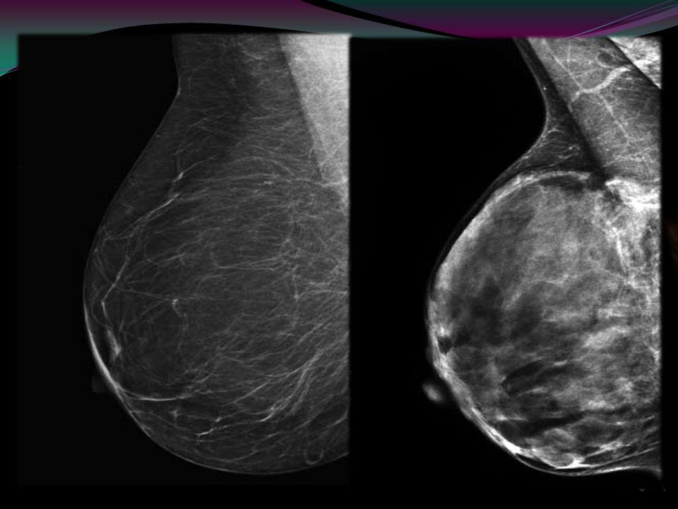 Introducción El cáncer de mama es la segunda causa de muerte