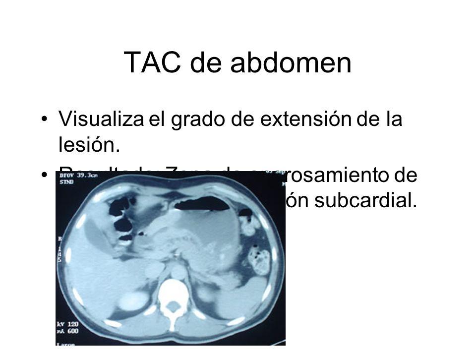 TAC de abdomen Visualiza el grado de extensión de la lesión.