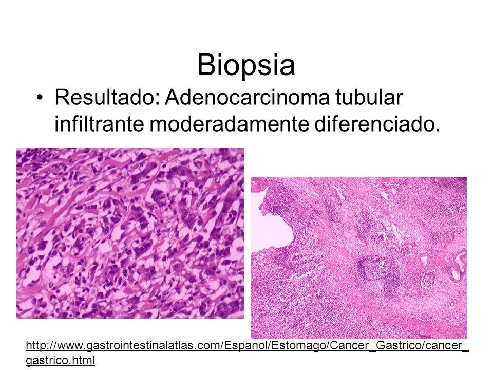 Biopsia Resultado: Adenocarcinoma tubular infiltrante moderadamente diferenciado.