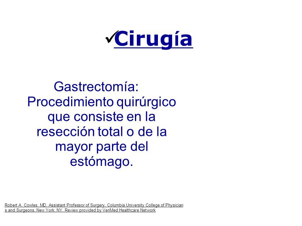 Cirugía Gastrectomía: Procedimiento quirúrgico que consiste en la resección total o de la mayor parte del estómago.