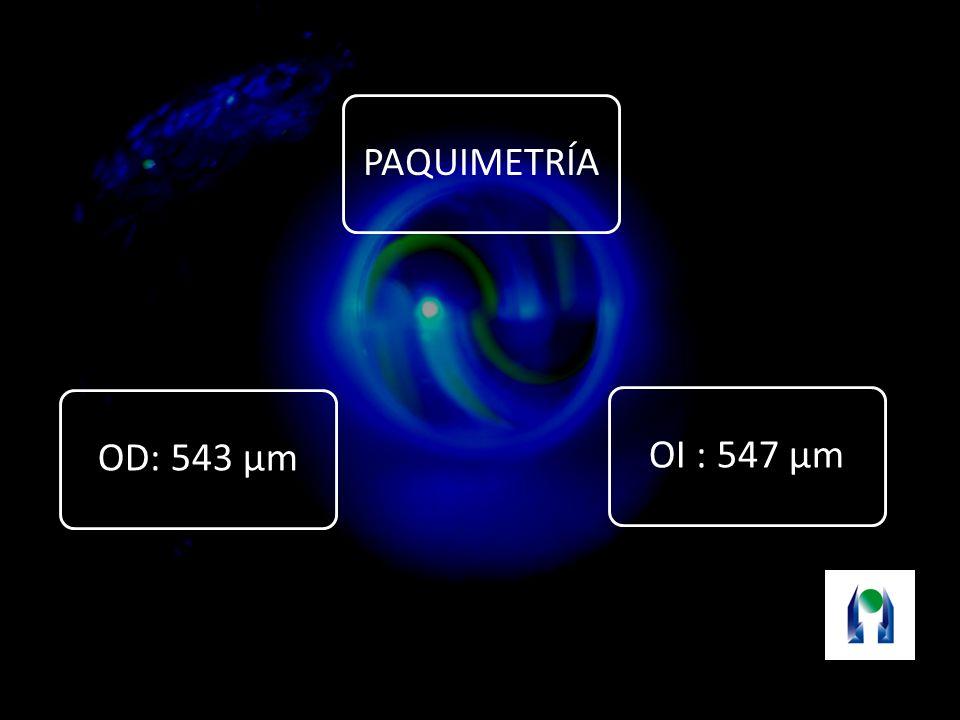 PAQUIMETRÍA OI : 547 µm OD: 543 µm