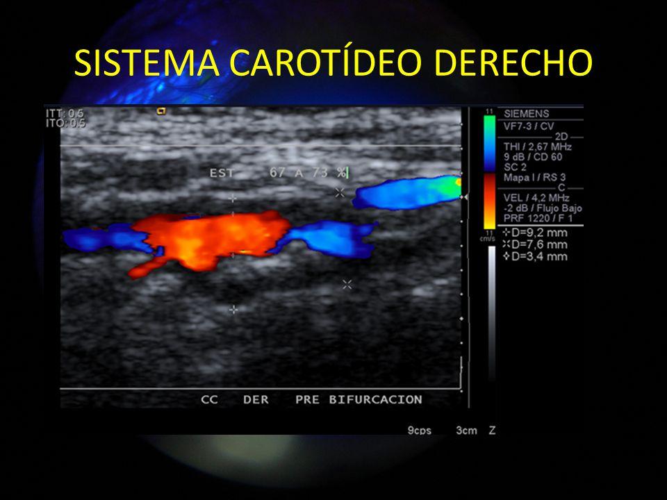 SISTEMA CAROTÍDEO DERECHO