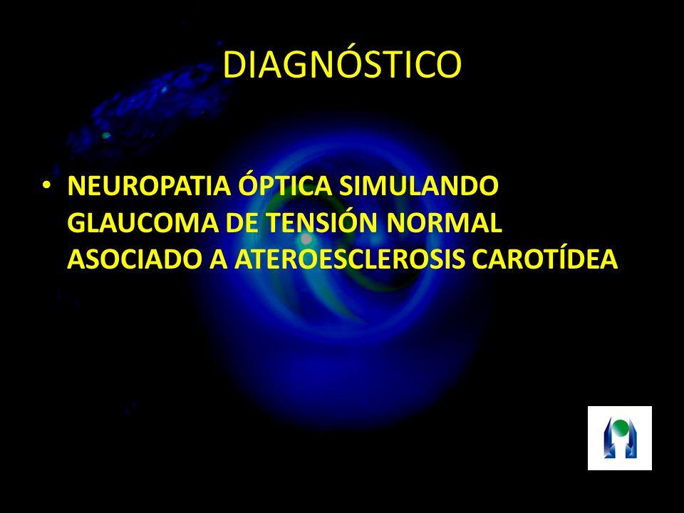 DIAGNÓSTICO NEUROPATIA ÓPTICA SIMULANDO GLAUCOMA DE TENSIÓN NORMAL ASOCIADO A ATEROESCLEROSIS CAROTÍDEA.